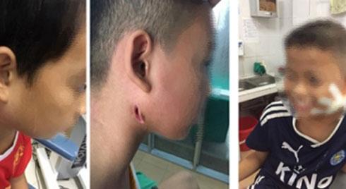 Một bệnh viện ở Nghệ An công bố 3 trẻ nhiễm bệnh Whitmore