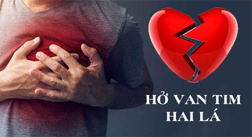 Những biến chứng nguy hiểm của bệnh hở van tim hai lá