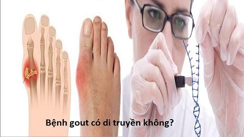 Bệnh gout có di truyền không? Biến chứng và cách phòng tránh