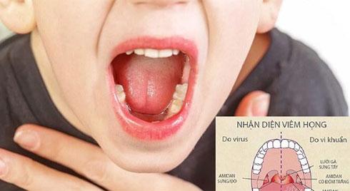 Viêm họng cấp ở trẻ: Nguyên nhân, dấu hiệu và cách điều trị