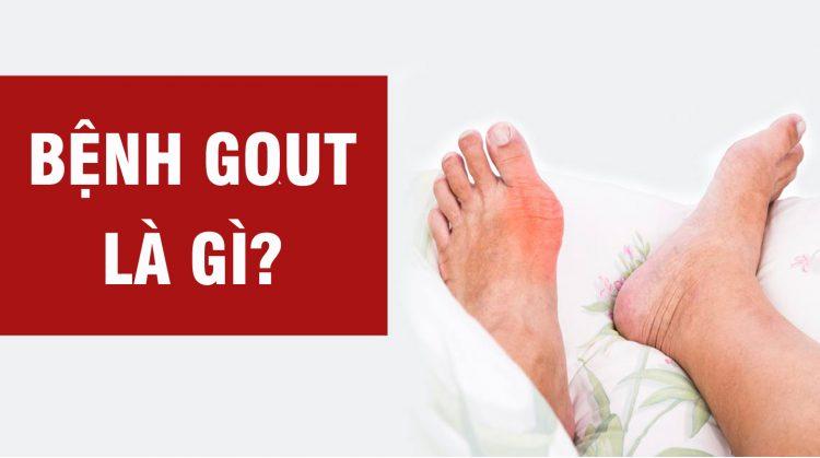 Làm thế nào để giảm đau ở bệnh nhân bị viêm khớp do gout?-1