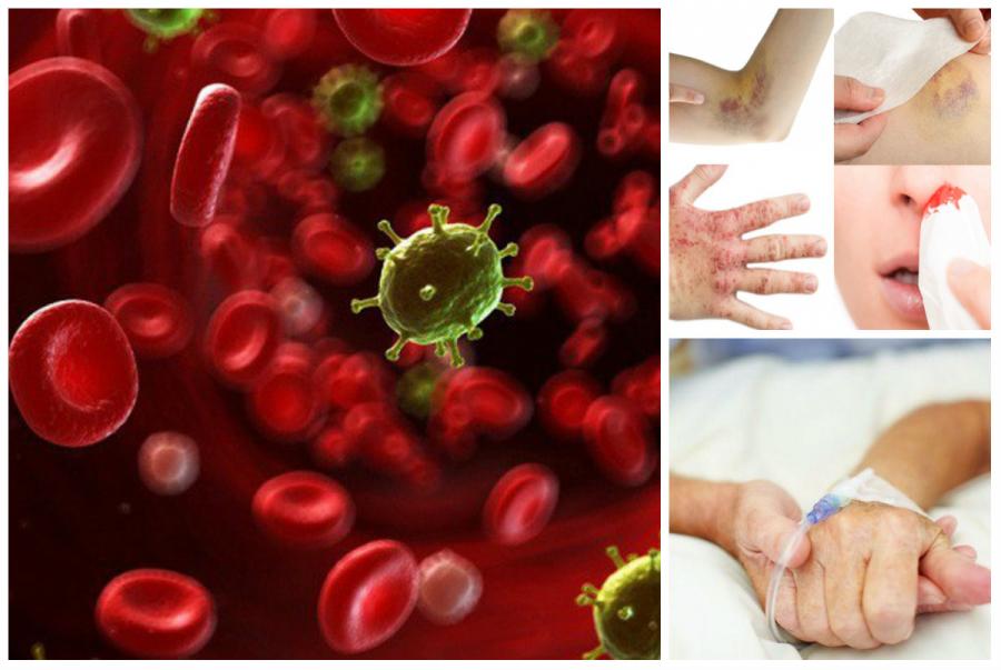 Dấu hiệu sớm cảnh báo căn bệnh ung thư máu-1