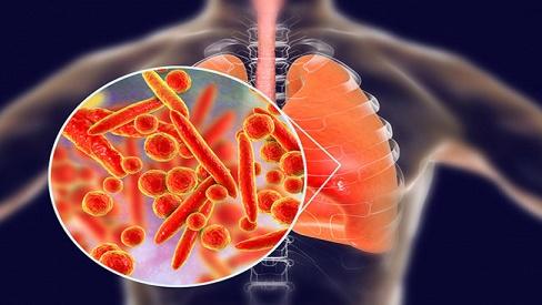 Viêm phổi thùy là gì? Nguyên nhân, triệu chứng và các biến chứng của bệnh