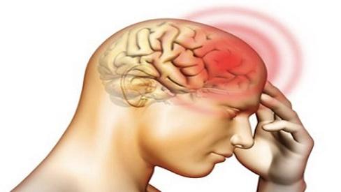 Bệnh viêm màng não mủ ở người lớn là gì? Nguyên nhân và cách phòng tránh
