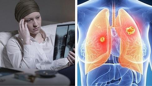 Nguyên nhân và cách phòng tránh bệnh ung thư phổi