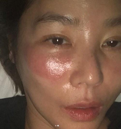 Bị bỏng rát mặt chỉ vì một lần đắp mặt nạ qua đêm: Lời cảnh báo thói quen làm đẹp của chị em-1