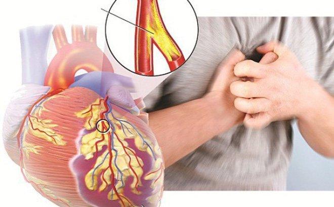Suy tim cấp độ 4 sống được bao lâu và cách chăm sóc bệnh nhân-1