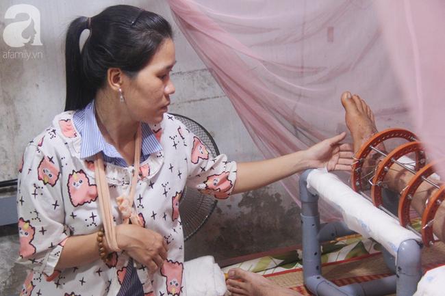Con gái 7 tuổi bị gãy chân, chồng nằm liệt giường, người vợ bệnh tật khẩn cầu sự giúp đỡ sau vụ tai nạn kinh hoàng-10