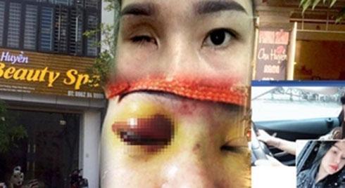 Nâng mũi tại cơ sở làm đẹp, cô gái bị mù vĩnh viễn