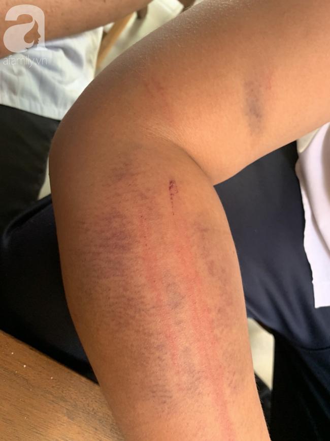 Hà Nội: Nghi án bé trai bị bố ruột dùng dây điện bạo hành, đánh bầm tím khắp người vì viết chữ xấu-1