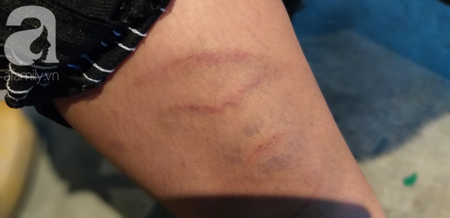 Hà Nội: Nghi án bé trai bị bố ruột dùng dây điện bạo hành, đánh bầm tím khắp người vì viết chữ xấu-3