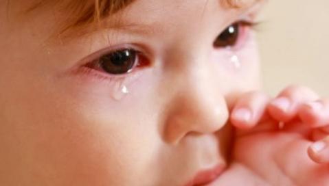 Bệnh đau mắt đỏ - Nguyên nhân và cách chăm sóc trẻ đau mắt đỏ