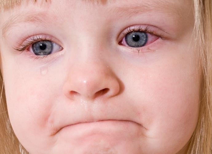 Bệnh đau mắt đỏ - Nguyên nhân và cách chăm sóc trẻ đau mắt đỏ-1