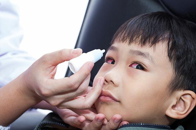 Bệnh đau mắt đỏ - Nguyên nhân và cách chăm sóc trẻ đau mắt đỏ-2