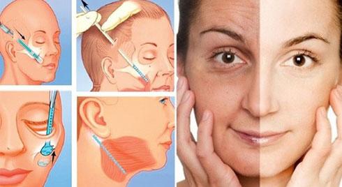 Tử vong sau khi căng da mặt : nguyên nhân và những điều cần biết để tránh gặp trường hợp tương tự