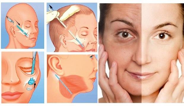 Tử vong sau khi căng da mặt : nguyên nhân và những điều cần biết để tránh gặp trường hợp tương tự-1