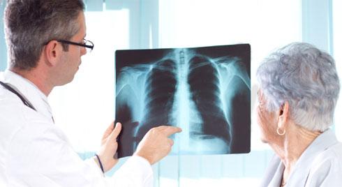 Phòng ngừa, chẩn đoán và điều trị viêm phổi bệnh viện