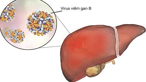 Viêm gan B có chữa được không?