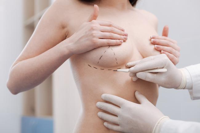 Ngày càng nhiều người tử vong do phẫu thuật nâng ngực: Đây là nguyên tắc sống còn trước khi bạn quyết định làm!-2