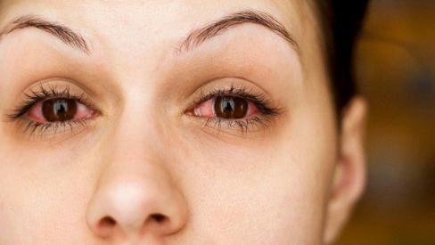 Đau mắt đỏ: 3 dấu hiệu nhận biết không thể bỏ qua