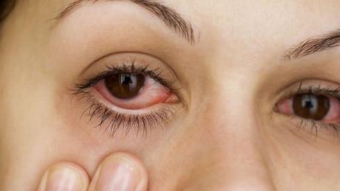 Mẹ bầu khi bị đau mắt đỏ và một số lưu ý quan trọng
