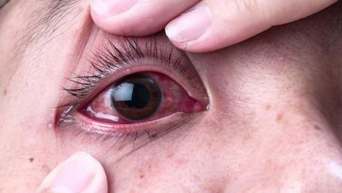 3 mẹo chữa đau mắt đỏ đơn giản nhưng vô cùng hiệu quả tại nhà