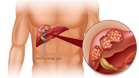 Biểu hiện của bệnh u gan lành tính và cách điều trị hiệu quả
