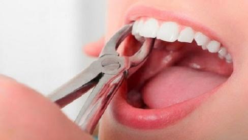 Niềng răng không cần nhổ răng phương pháp chỉnh nha mới nhất