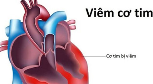 Viêm cơ tim: Nguyên nhân, triệu chứng, chẩn đoán và điều trị