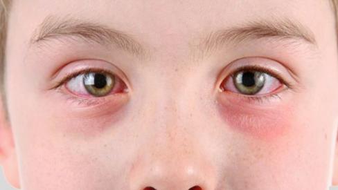Cách chữa bệnh đau mắt đỏ vô cùng hiệu quả tại nhà