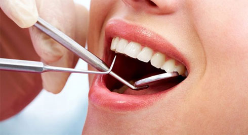 Tác hại của cao răng , có nên lấy cao răng thường xuyên không?