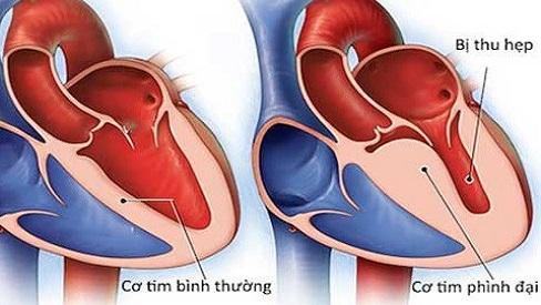 Bệnh cơ tim hạn chế: Nguyên nhân, triệu chứng và cách điều trị