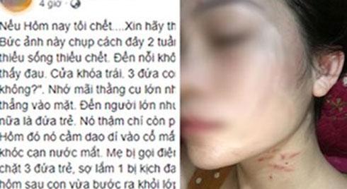 """Người phụ nữ nghi bị chồng đánh đập kêu cứu cộng đồng mạng: """"Xin ai đó hãy báo công an giúp"""""""
