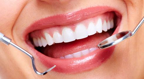 Tất tần tật các phương pháp nha khoa thẩm mỹ cho nàng sở hữu hàm răng khỏe đẹp
