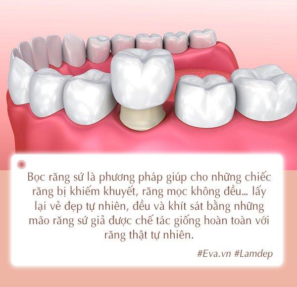 Tất tần tật các phương pháp nha khoa thẩm mỹ cho nàng sở hữu hàm răng khỏe đẹp-2