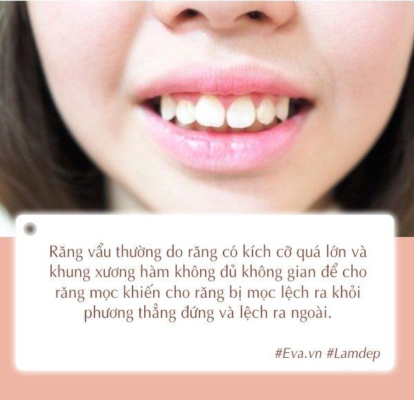 Tất tần tật các phương pháp nha khoa thẩm mỹ cho nàng sở hữu hàm răng khỏe đẹp-3