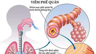 6 bệnh viêm phổi - phế quản thường gặp-1