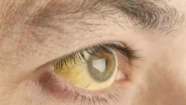 4 dấu hiệu trên khuôn mặt cảnh báo gan đang kêu cứu-3
