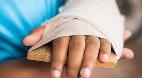 Sơ cứu khi bị gãy xương: Đừng cố di chuyển người bệnh