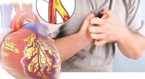 Biểu hiện và xử trí cấp cứu sốc tim