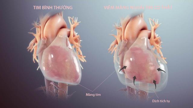 Nguyên nhân, triệu chứng và cách điều trị bệnh viêm màng ngoài tim-1