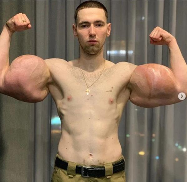 Bơm 3 lít dầu vào tay, thanh niên 23 tuổi bị thối hết cơ bắp-1