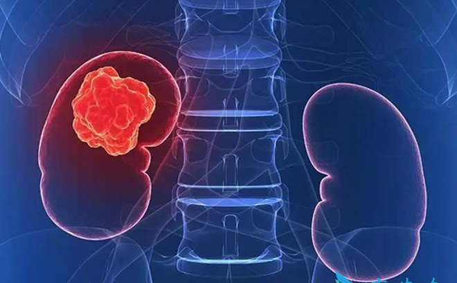 13 dấu hiệu trên cơ thể cảnh báo ung thư thận ngầm phát triển mạnh mẽ-1