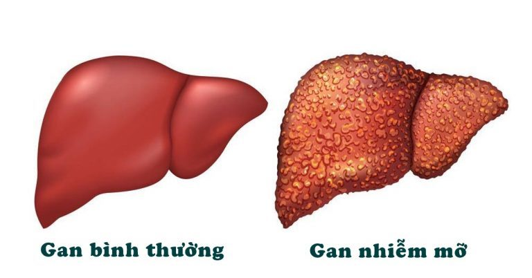 Gan nhiễm mỡ, sát thủ thầm lặng gây ung thư gan-1