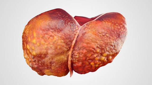 Gan nhiễm mỡ, sát thủ thầm lặng gây ung thư gan-2