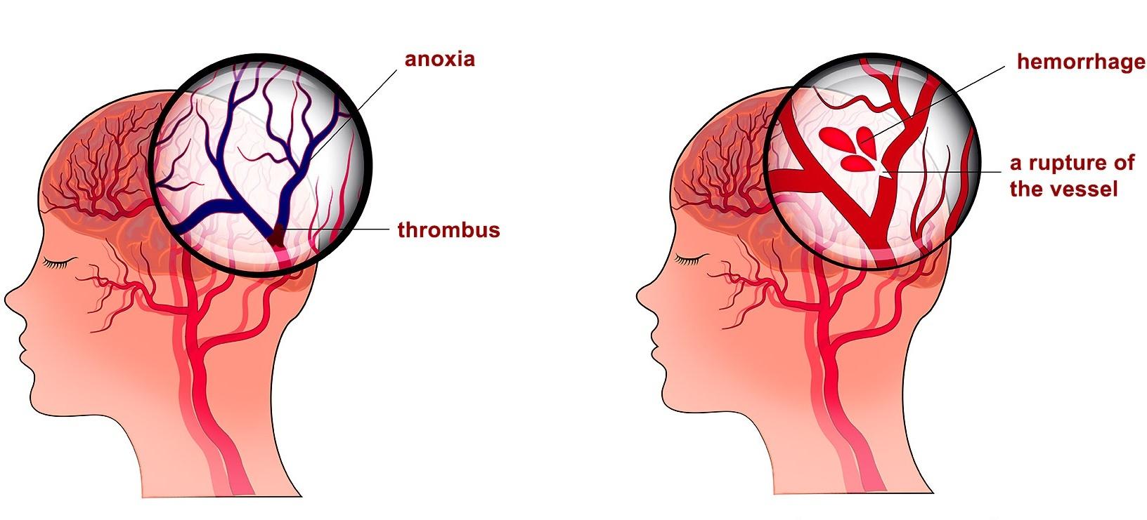 Những điều bạn cần biết để không bị đột quỵ-1
