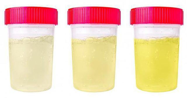 Phụ nữ xuất hiện 3 điểm này khi đi vệ sinh vào buổi sáng, chứng tỏ tử cung khỏe mạnh-2