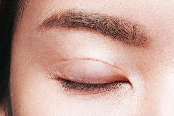 Cô gái trẻ không thể nhắm mắt sau phẫu thuật cắt mí-1