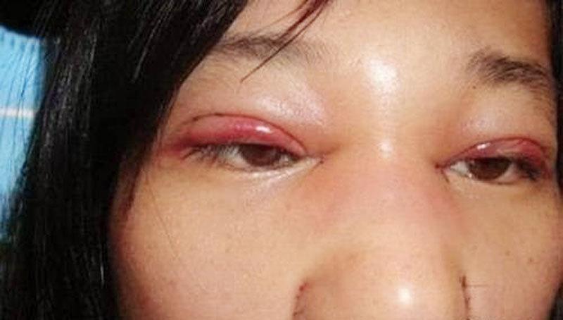 Cô gái trẻ không thể nhắm mắt sau phẫu thuật cắt mí-3