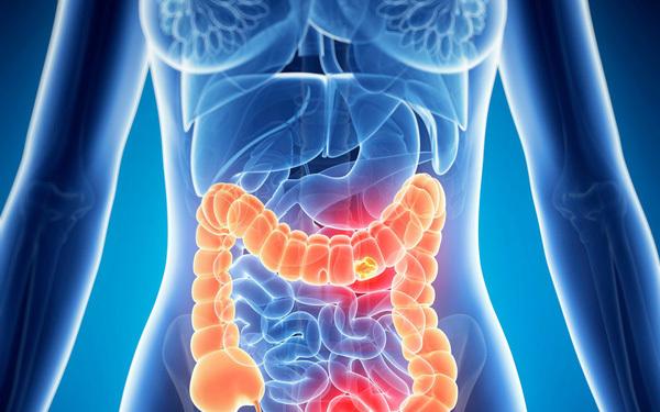 5 loại thực phẩm càng ăn nhiều càng dễ mắc ung thư ruột-1